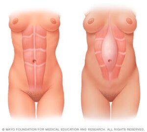diastasis-abdominal