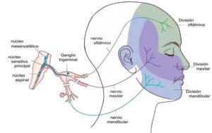 Diferencias cefalea y migraña